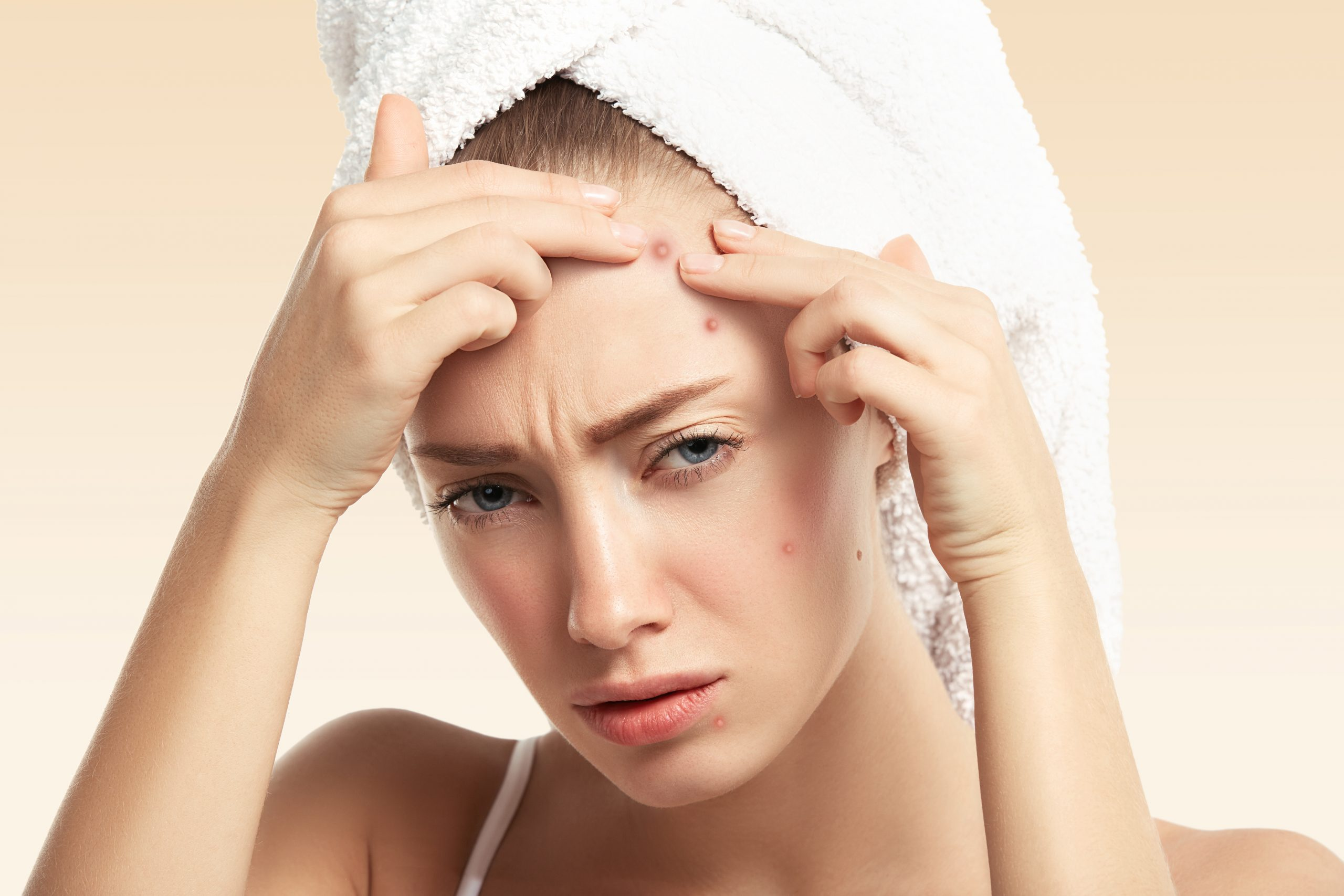 Types of Acne and their Treatment