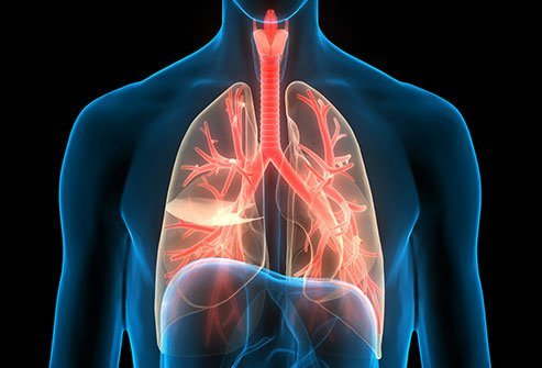 Asthma and Chronic Bronchitis and their Homoeopathic Treatment